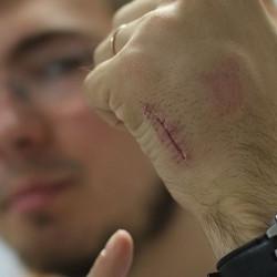 Врач вживил в свое тело шесть микрочипов